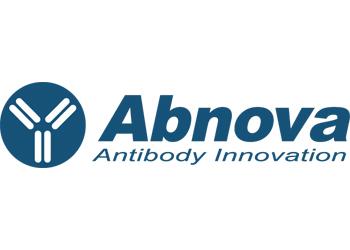 فروش محصولات شرکت Abnova ابنوآ